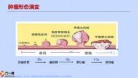 工银安盛御享颐生尊享版特定肿瘤切除术解析25页.pptx